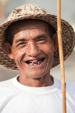 13336637_s_permanent dentures