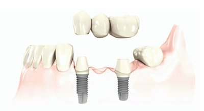 multiple-teeth-dental-implants