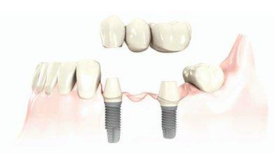 multiple-teeth-dental-implants