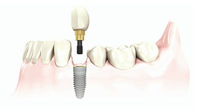 Sugarland TX dental implant center