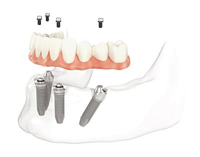 all-on-4-lower-jaw full mouth dental implants