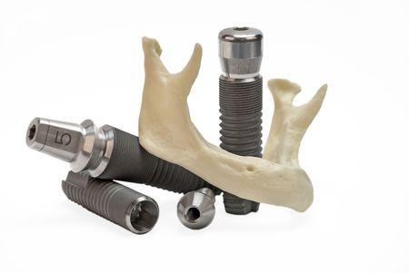 jaw implants