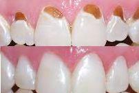 6648531_s_repairing-tooth-enamel