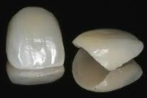 how much do veneers cost 7748531_s