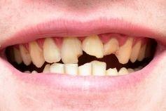 broken tooth 19933971_s
