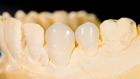 31210139_s_cost-of-porcelain-veneers