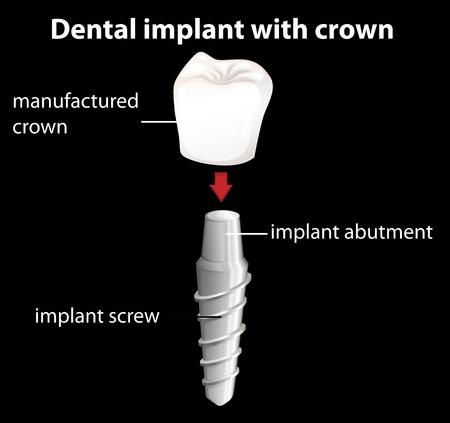 26570910_s_cost-of-denta-implants