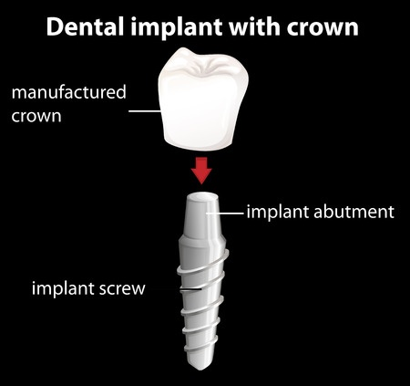 26570910_s_cost-of-denta-implants