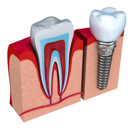 32591656_s_dental implants procedure