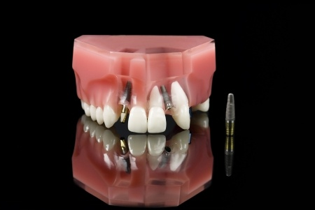 dentist implants-6721294_s