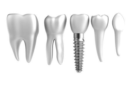 affordable dental implants-27725172_s