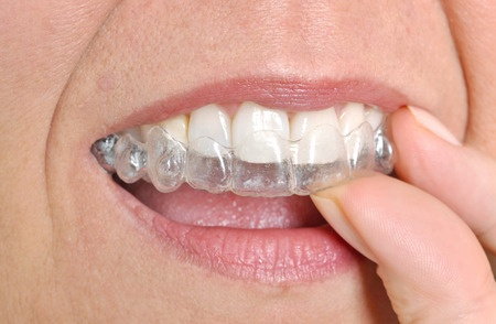 teeth alignment_30682817_s