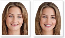 temporary cosmetic teeth