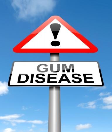 gum_disease_19006366_s