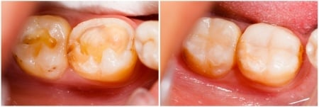 tooth_filling