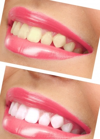 teeth bleaching_21761699_s