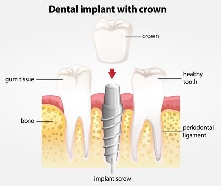 20679958_s_dental_implant