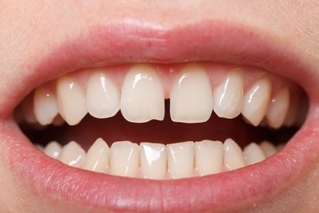 chipped tooth 18575097_s