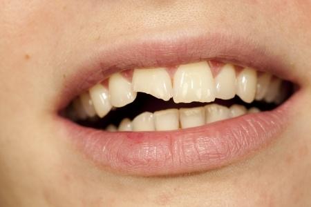 broken tooth repair options