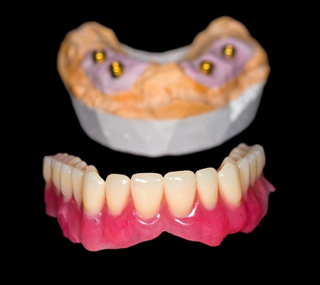 implant supported dentures 31417325_s-1