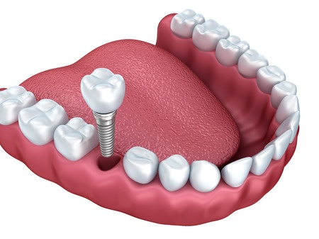 dental implant services 40005772_s